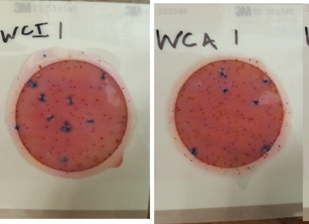 microscope view of contamination
